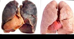 Больная тема. О курении