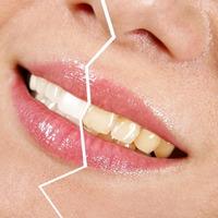 Продукты, от которых желтеют зубы
